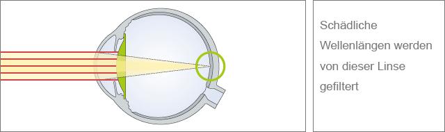 Linse mit erweiterter Filterfunktion